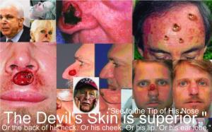 The Devil's Epidermis